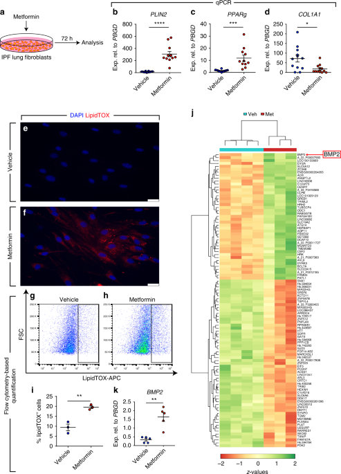 Metformin induces lipogenic differentiation in myofibroblasts to reverse lung fibrosis