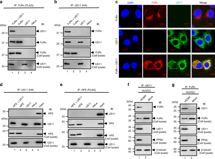 QnA VBage Human cytomegalovirus evades antibody-mediated immunity through endoplasmic reticulum-associated degradation of the FcRn receptor