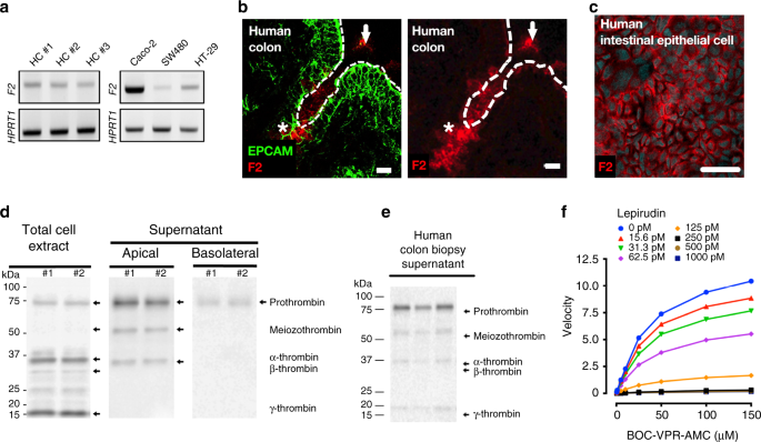 Active thrombin produced by the intestinal epithelium