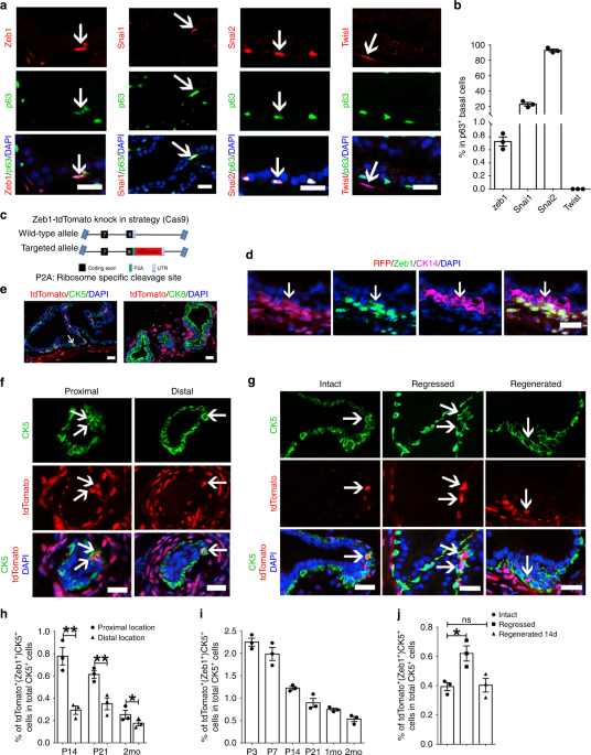 Identification of a Zeb1 expressing basal stem cell subpopulation in the prostate