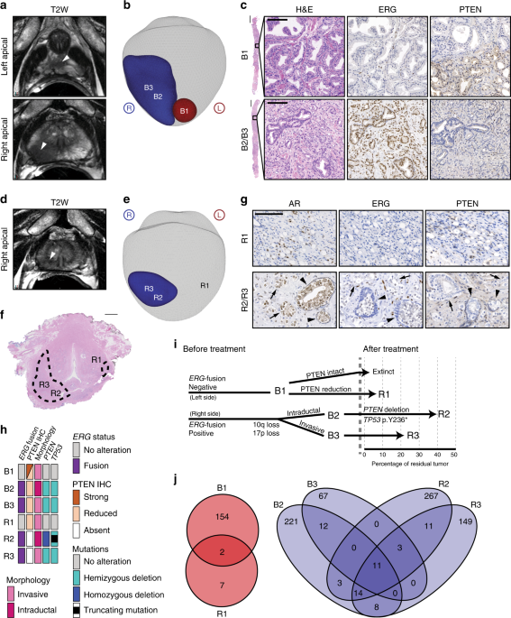 A case report of multiple primary prostate tumors with differential drug sensitivity