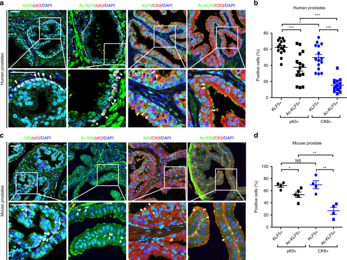 Klf5 acetylation regulates luminal differentiation of basal progenitors in prostate development and regeneration