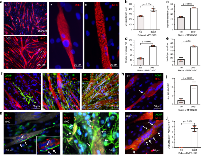 Neural cell integration into 3D bioprinted skeletal muscle constructs accelerates restoration of muscle function