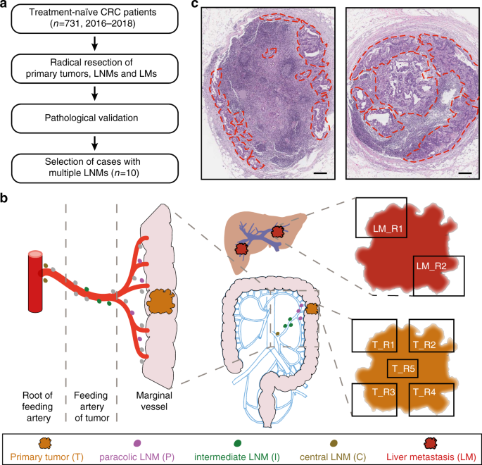 Mapping The Spreading Routes Of Lymphatic Metastases In Human Colorectal Cancer Nature Communications