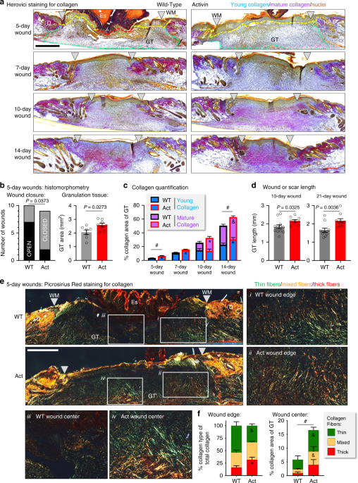 Activin-mediated alterations of the fibroblast transcriptome and matrisome control the biomechanical properties of skin wounds