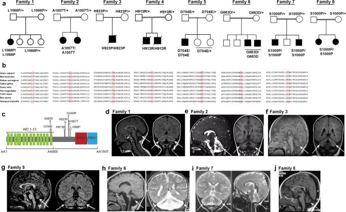 Loss of function mutations in GEMIN5 cause a neurodevelopmental disorder