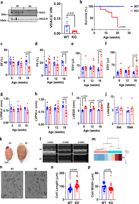 Cardiac-specific deletion of voltage dependent anion channel 2 leads to dilated cardiomyopathy by altering calcium homeostasis