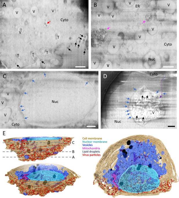 Correlative multi-scale cryo-imaging unveils SARS-CoV-2 assembly and egress - Nature Communications