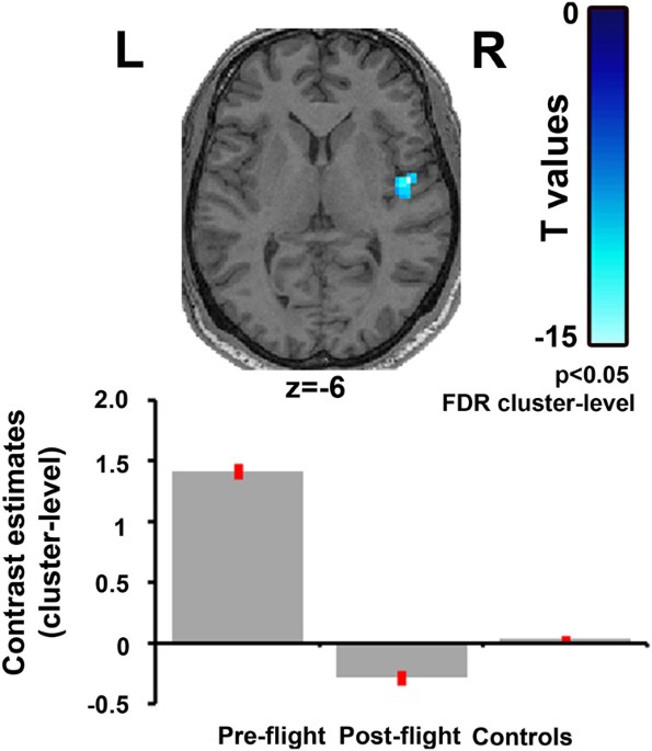 spaceflight induced neuroplasticity in humans as measured by mri rh nature com