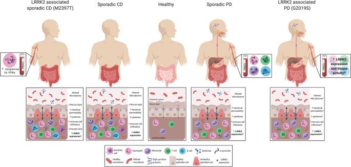 Is LRRK2 the missing link between inflammatory bowel disease and Parkinson's disease?