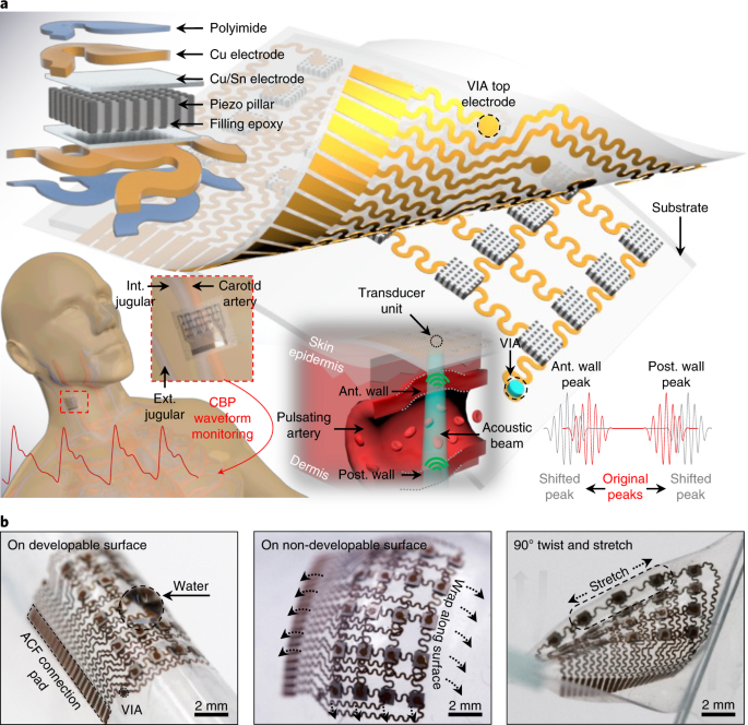 Monitoring of the central blood pressure waveform via a