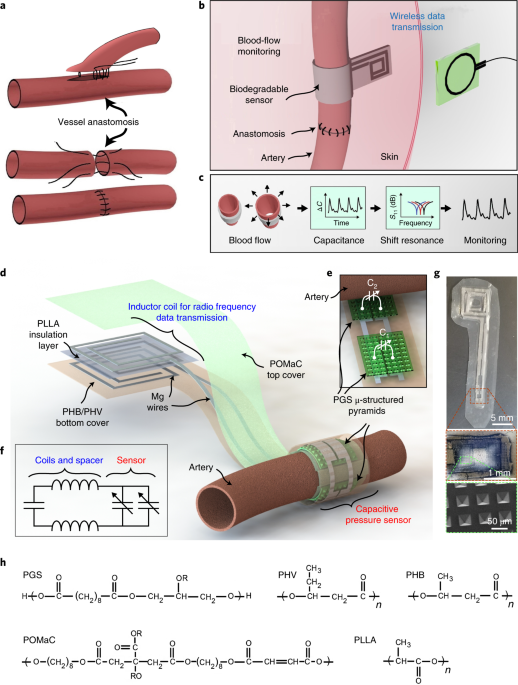 Biodegradable and flexible arterial-pulse sensor for the