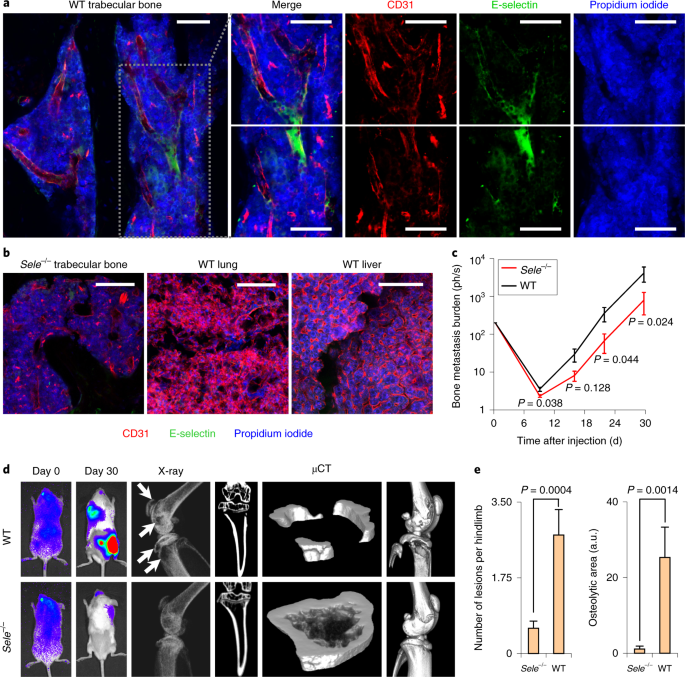 Bone vascular niche E-selectin induces mesenchymal–epithelial transition and Wnt activation in cancer cells to promote bone metastasis