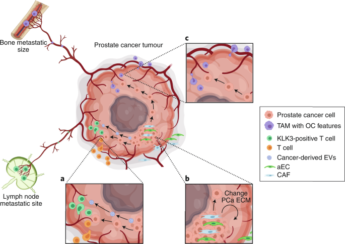 Prostate cancer hijacks the microenvironment