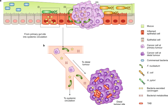 Nanotechnology intervention of the microbiome for cancer therapy