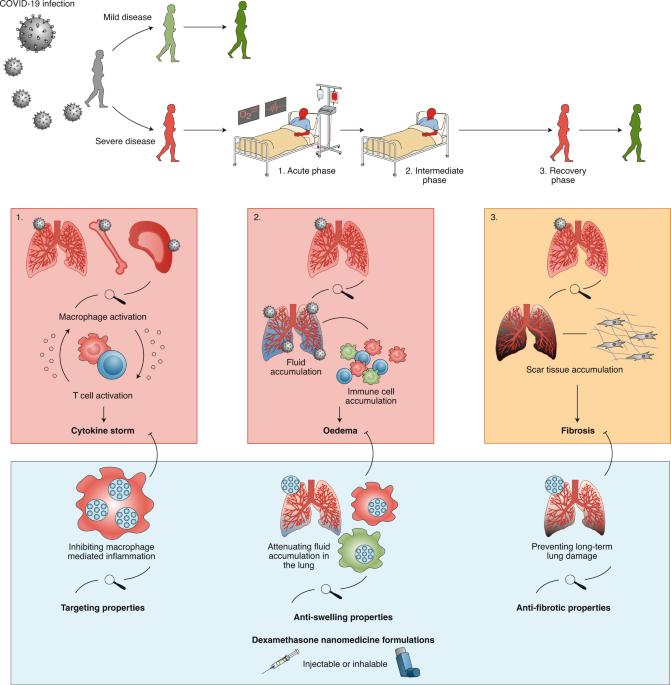 Dexamethasone nanomedicines for COVID-19