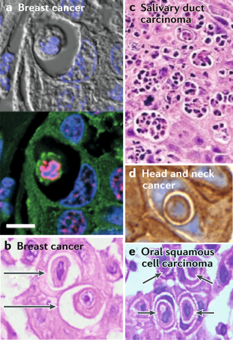 Cell-in-cell phenomena in cancer