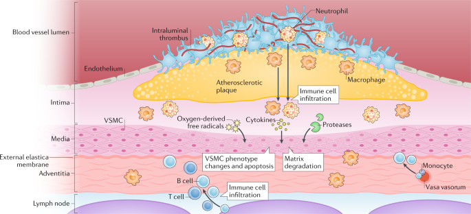 Schematic Illustration Of Some The Potential Effects Inflammation On Abdominal Aortic Aneurysms AAAs According To Theory AAA