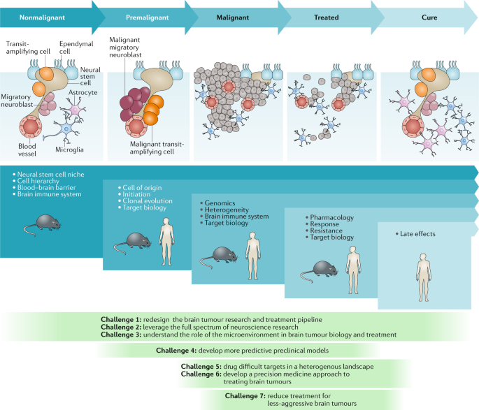 Challenges to curing primary brain tumours | Nature Reviews