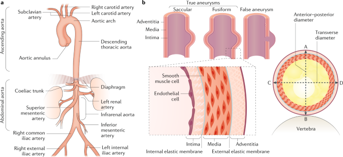 a | schematic of aortic anatomy  the descending thoracic aorta spans from  distal to the origin of the left subclavian artery to the diaphragm