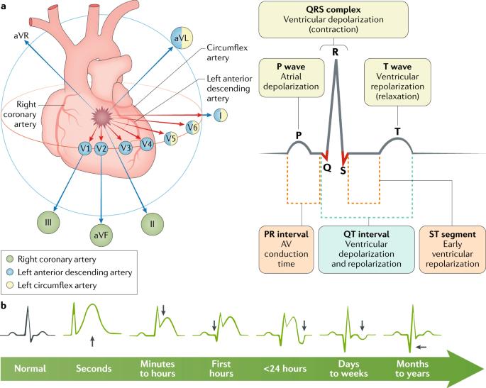 ST-segment elevation myocardial infarction | Nature Reviews