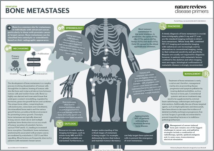 metastatic cancer bone)