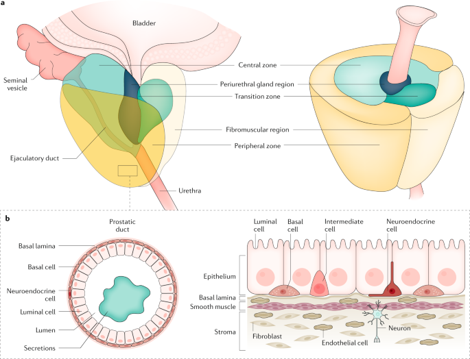 prostate cancer types of cells)