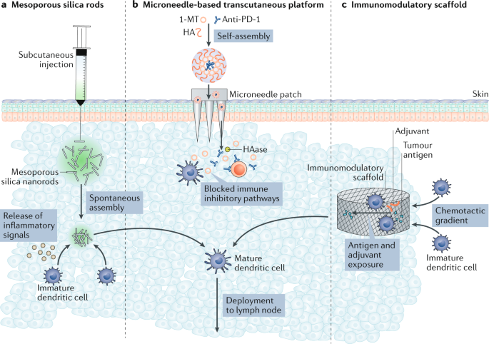 Delivery technologies for cancer immunotherapy | Nature Reviews Drug