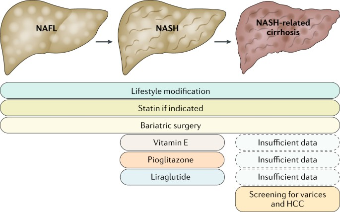 noninvasive biomarkers in nafld and nash current progress and