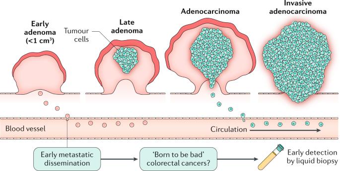 cancer colorectal metastatic