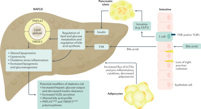 The complex link between NAFLD and type 2 diabetes mellitus — mechanisms and treatments