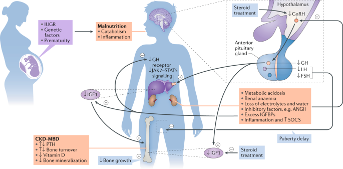 Clinical Practice Recommendations For Growth Hormone Treatment In Children With Chronic Kidney Disease Nature Reviews Nephrology