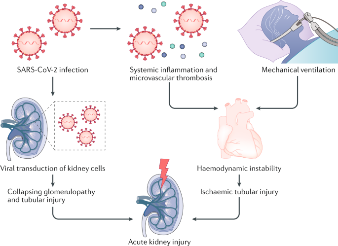 Sars Cov 2 In The Kidney Bystander Or Culprit Nature Reviews Nephrology