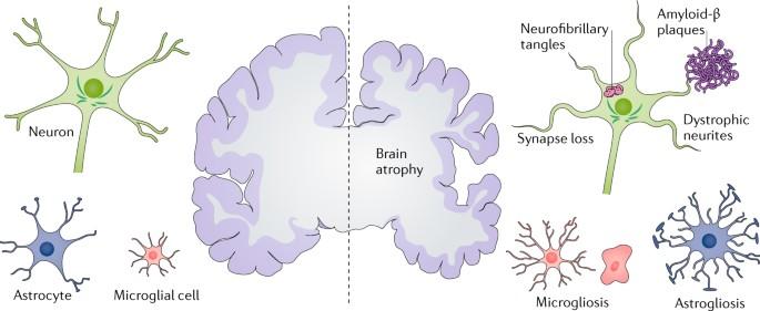 Alzheimer S Disease Nature Reviews