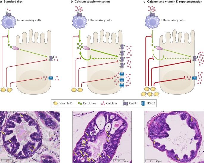 Prostatitis kalcium prosztatagyulladas tünetek