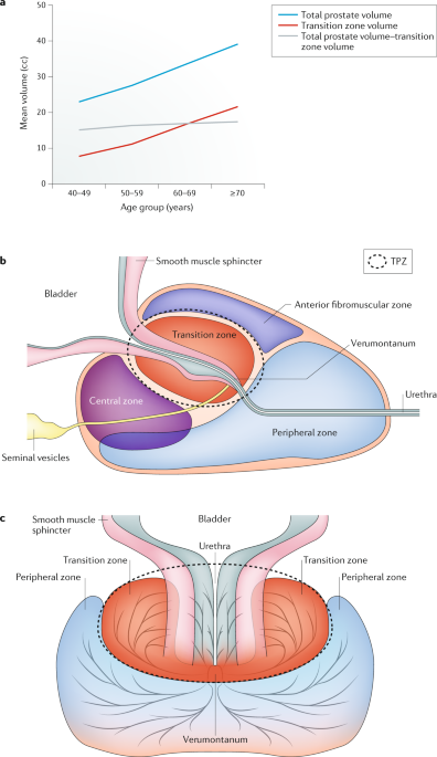Mesenchymal Stem Cells And The Embryonic Reawakening Theory Of Bph