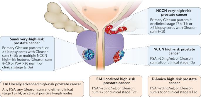 high risk prostate cancer