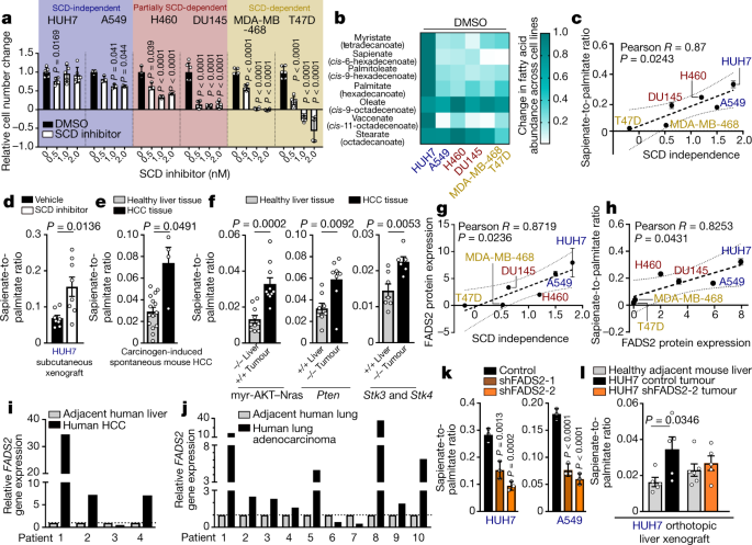 Evidence for an alternative fatty acid desaturation pathway increasing cancer plasticity