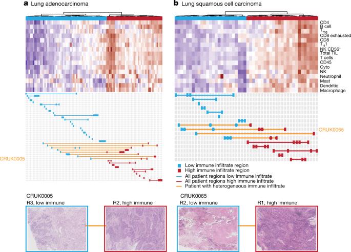 nature.com - Neoantigen-directed immune escape in lung cancer evolution
