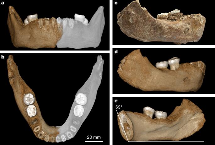 A late Middle Pleistocene Denisovan mandible from the Tibetan Plateau