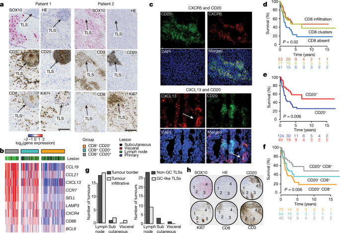 Tertiary lymphoid structures improve immunotherapy and survival in melanoma