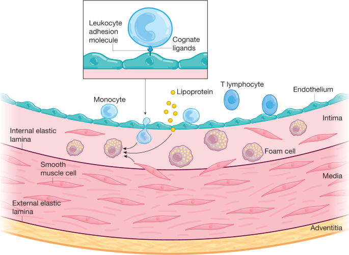 The changing landscape of atherosclerosis
