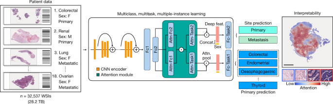 AI-based pathology predicts origins for cancers of unknown primary