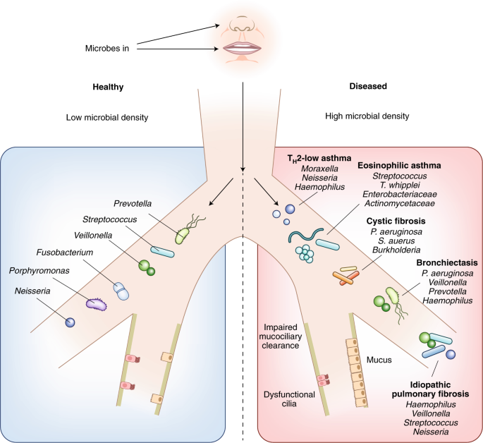 The influence of the microbiome on respiratory health