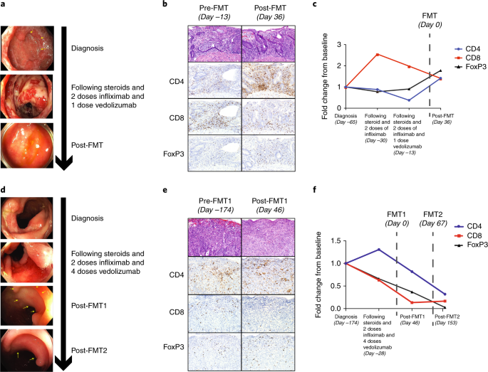 Fecal microbiota transplantation for refractory immune checkpoint inhibitor-associated colitis