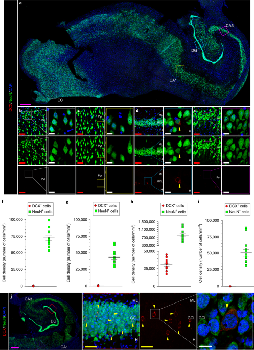 Adult hippocampal neurogenesis is abundant in neurologically healthy subjects and drops sharply in patients with Alzheimer's disease