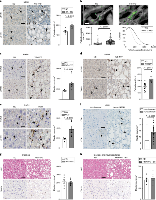 Platelet GPIbα is a mediator and potential interventional target for NASH and subsequent liver cancer