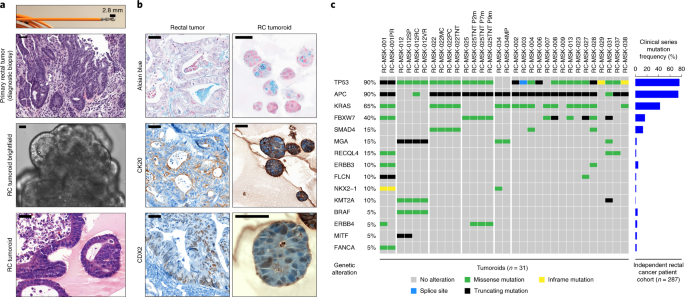 A Rectal Cancer Organoid Platform To Study Individual Responses To Chemoradiation Nature Medicine
