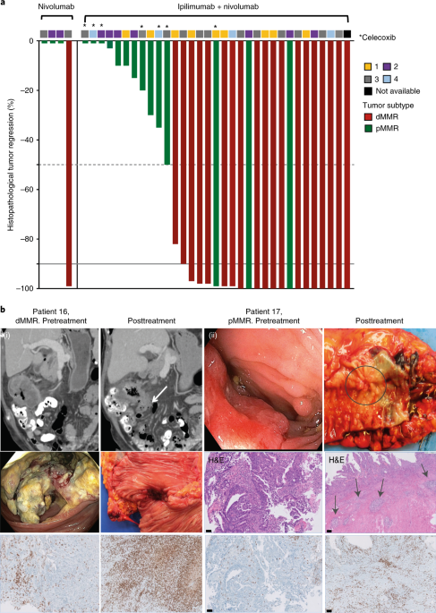 Neoadjuvant Immunotherapy Leads To Pathological Responses In Mmr Proficient And Mmr Deficient Early Stage Colon Cancers Nature Medicine