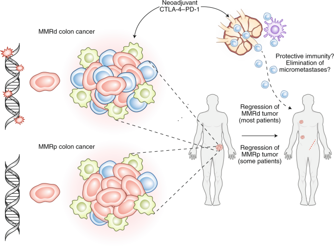 Neoadjuvant Immune Checkpoint Blockade In Resectable Colon Cancer Nature Medicine